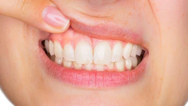 periodontia na Integrare